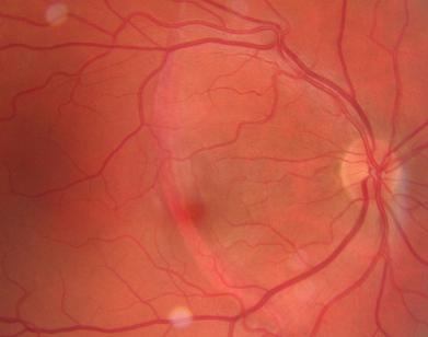 The Second Photo Shows It A Few Days Afterwards Where There Is Small Choroidal Hemorrhage And Third Fluorescein That No Early