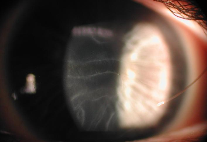 Slit Lamp Camera Avellino Dystrophy And Haab S Striae